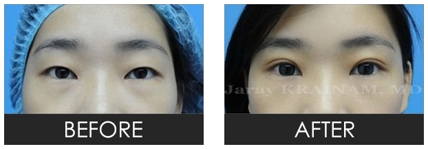 Eyelid crease reconstruction